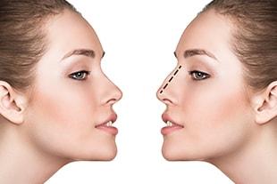 Chirurgie esthétique du nez ou rhinoplastie à Saint-Louis