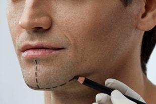 Chirurgie esthétique du menton