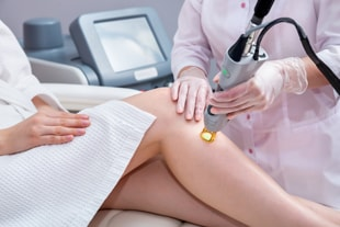 Epilation laser à Mulhouse